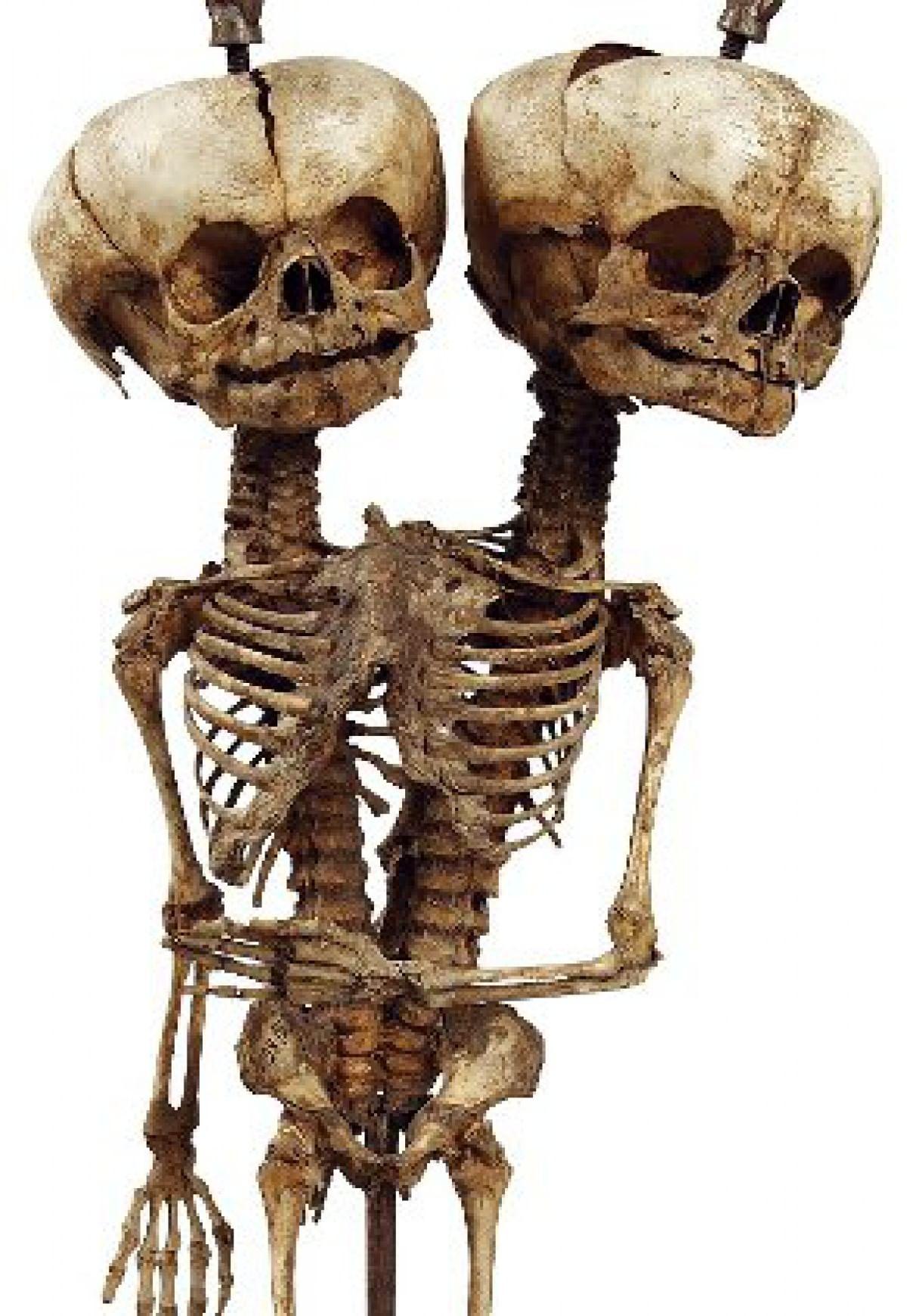 Детский скелет с двумя головами